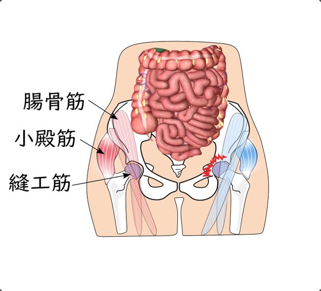 股関節の痛み 大腿骨頭