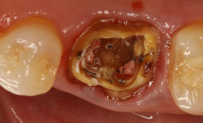 歯が割れたときのインプラント治療