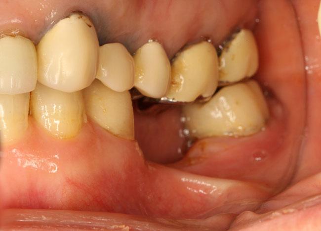 歯を抜いた後の骨と歯茎の吸収