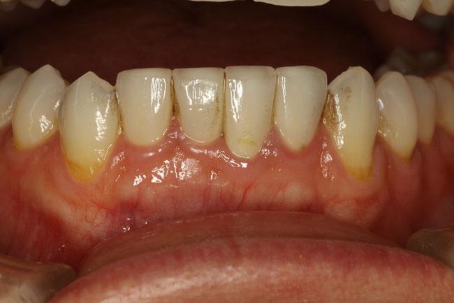 歯に汚れがつきやすい場所