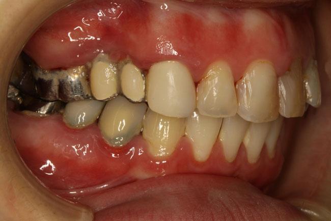 歯茎が黒い