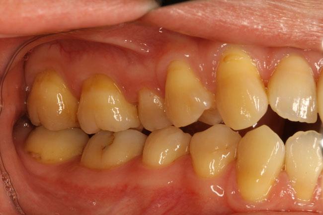 奥歯の歯茎が下がって知覚過敏
