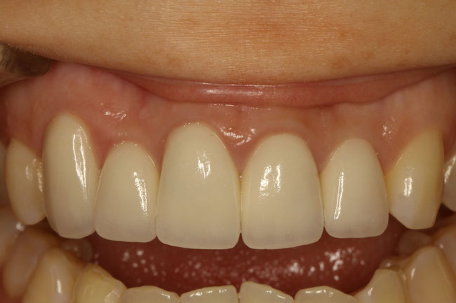左の差し歯が長いケース