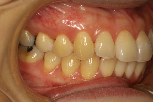 歯茎が下がったときの治療例