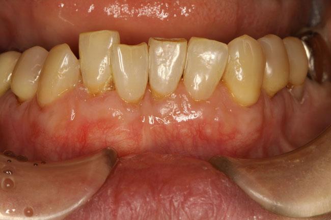 歯ぐきの下がりとレジン
