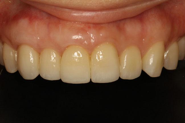 差し歯の交換と歯ぐきの再生治療