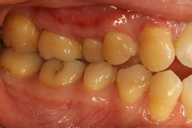 下がった歯ぐきを回復させた状態