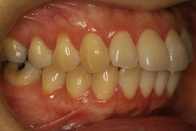 歯茎が下がって気になる方の治療