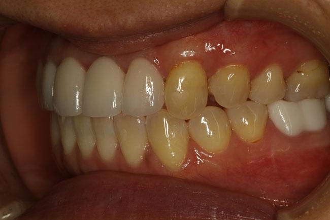犬歯の歯茎が下がったときの治療