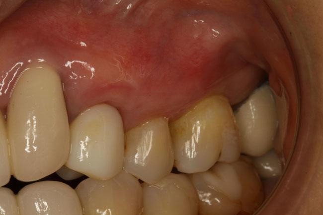 歯ぐきの再生