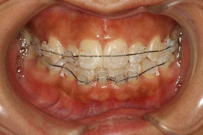 前歯の部分矯正モニター治療中