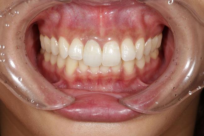 仮歯の交換