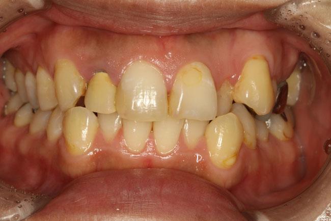 歯並びの短期間矯正治療