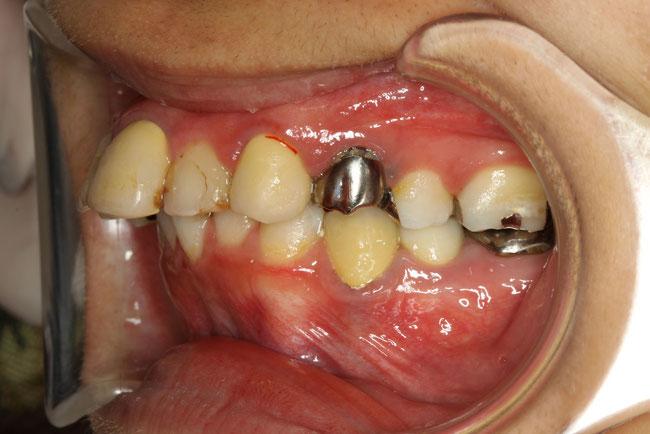 審美歯科治療が難しい出っ歯のケース
