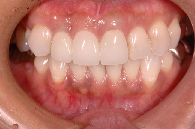 前歯3本のブリッジケース