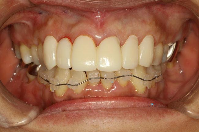 前歯の歯並びを仮歯で調整