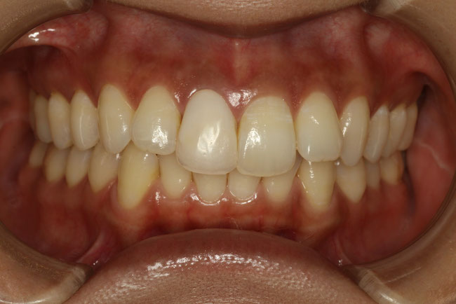 歯の大きさの不揃いな仮歯