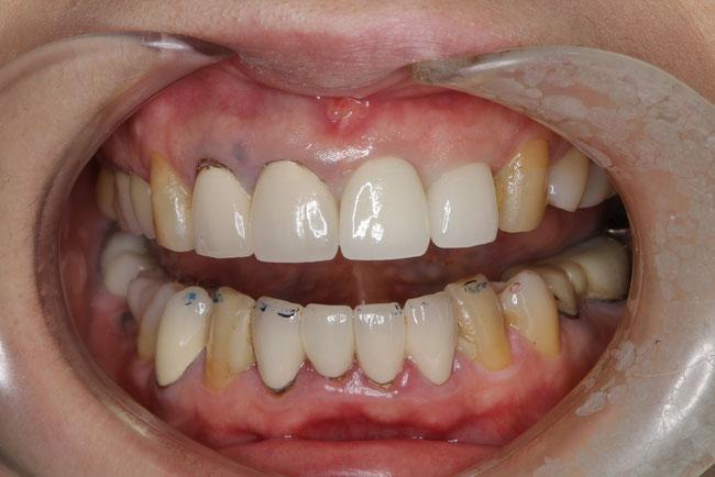 歯茎のラインの良くない例
