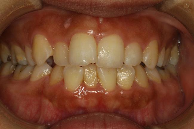 前歯の部分矯正モニター 治療前