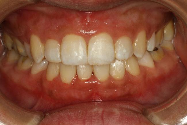 前歯の部分矯正モニター治療後