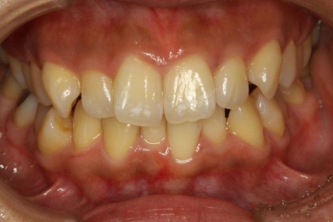 歯のねじれ