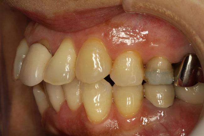 全体的に出っ歯
