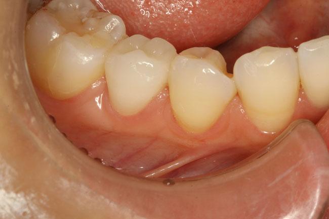 奥歯の審美歯科ケース