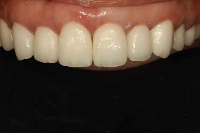 審美歯科のメンテナンス