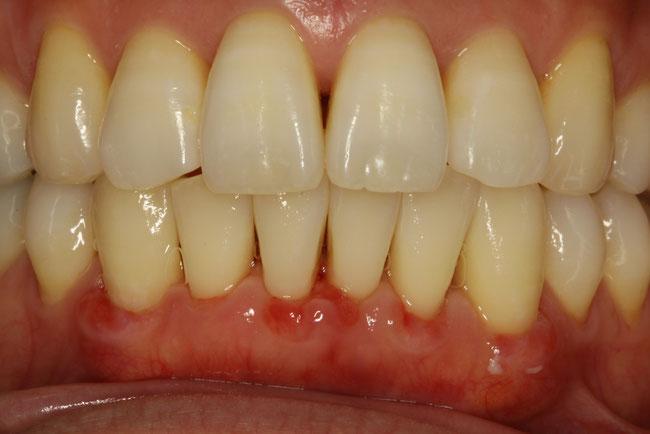 歯茎の回復