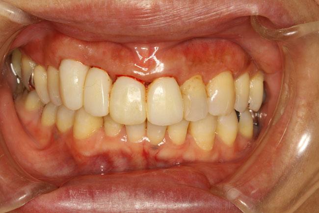 歯並びの確認