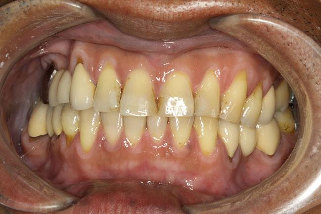 歯茎の退縮と歯の形の変更