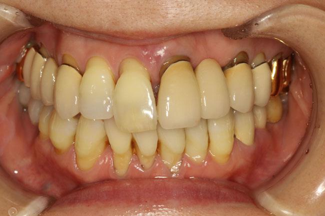 重度の歯周病のかたの審美歯科治療例
