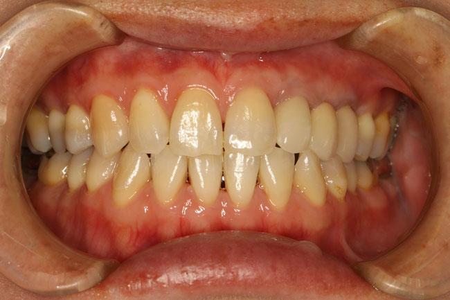 前歯の審美歯科治療後