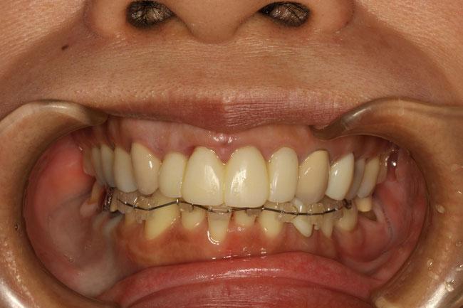 下の歯の歯並びを部分矯正治療で治しています.