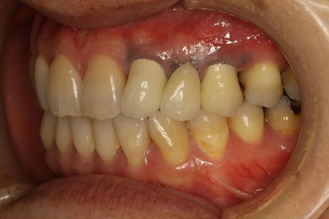 歯茎の黒ずみの原因が金属の粉