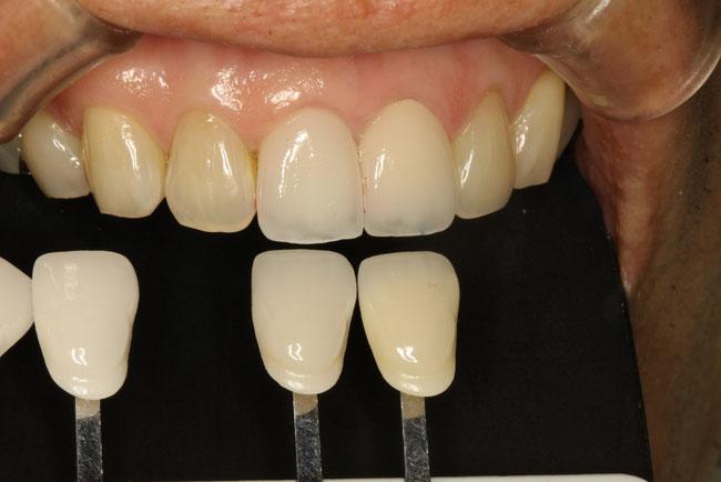 差し歯の色合わせ