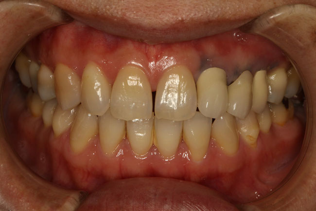 歯茎が黒いと前歯の見た目が悪くなります。