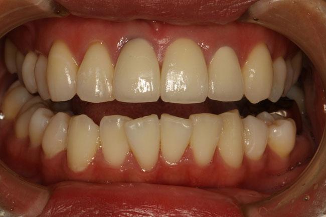 変色歯の治療後
