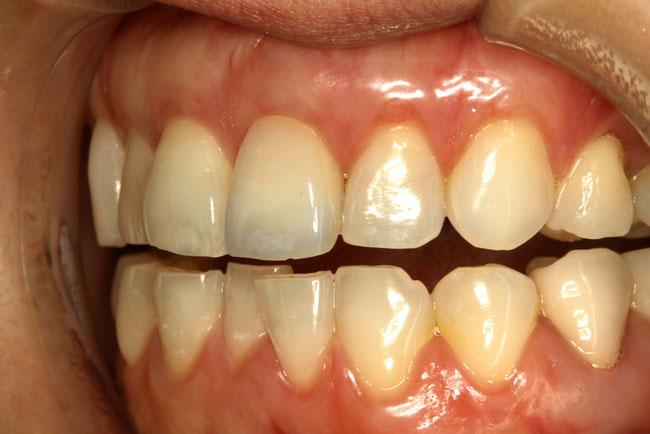 前歯1本をラミネートベニアで色の改善を行ったケース