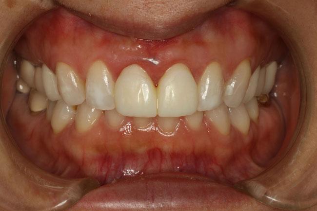 歯茎の整形後1ヶ月