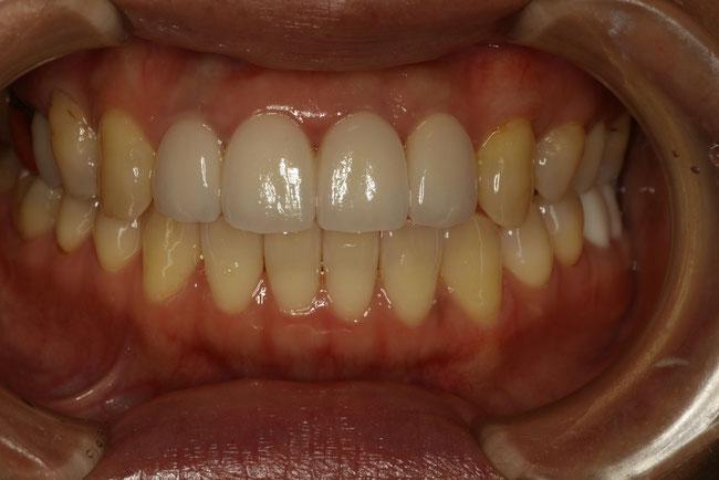 歯茎の炎症