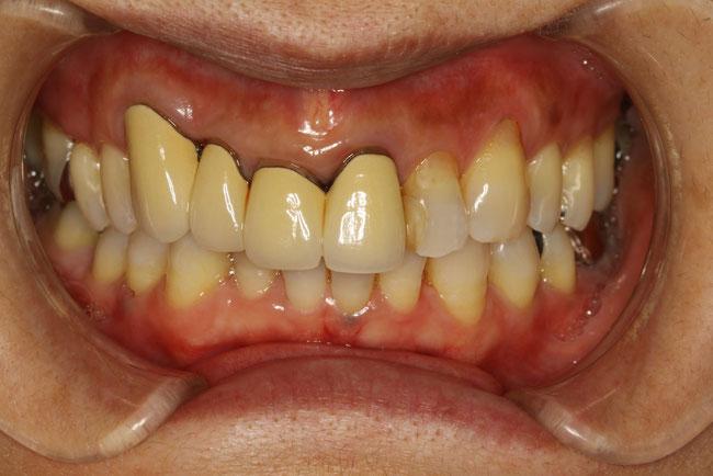 歯が曲がっているケース