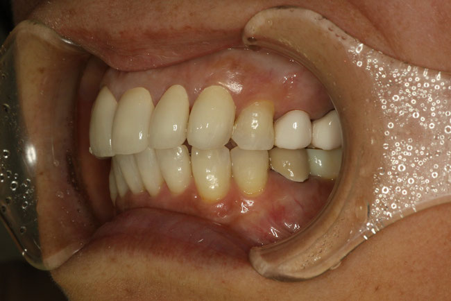 出っ歯の治療