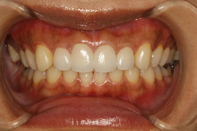 前歯の形を統一する