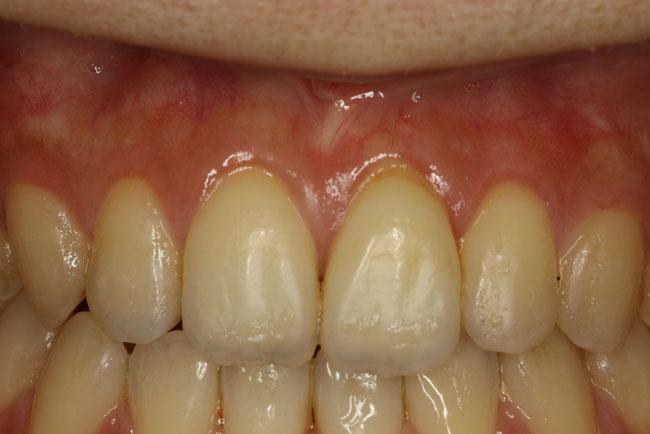 歯茎の審美歯科