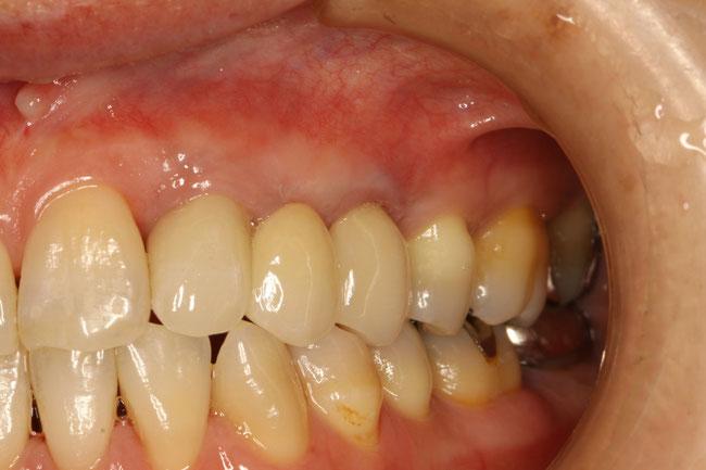 歯茎の黒ずみの治療後