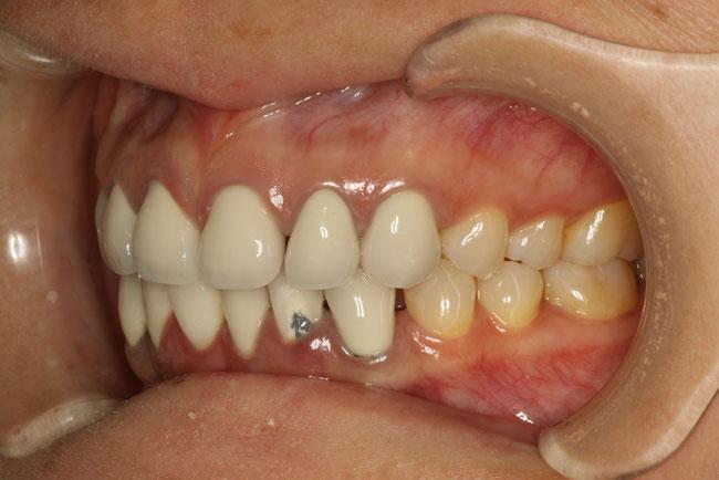 従来の差し歯