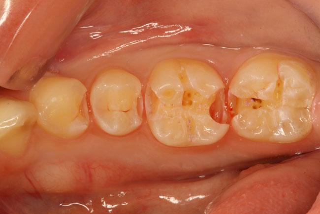 歯と歯の間の虫歯