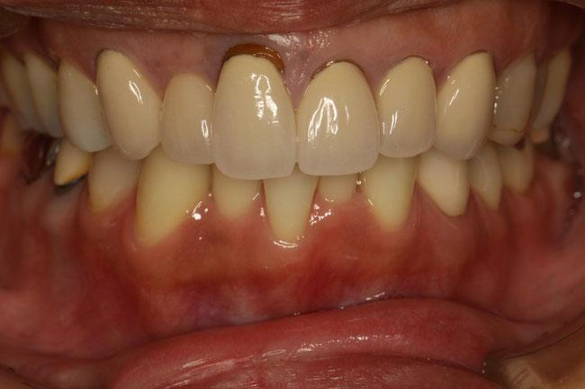 差し歯の交換と歯並び治療