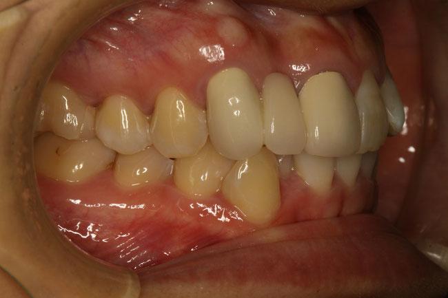 ブリッジの差し歯が長い
